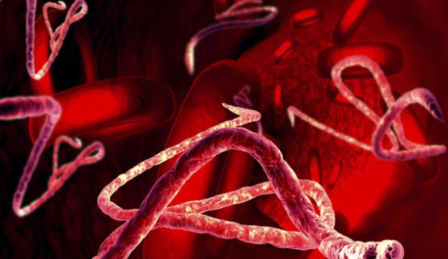 sintomas-ebola